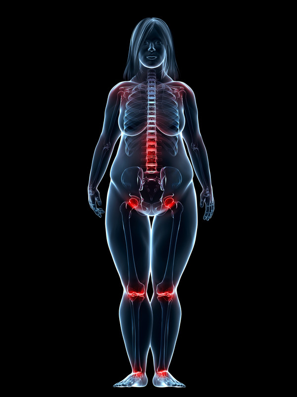 Pressure points with obesity